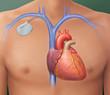 Leinwandbild Motiv Herzschrittmacher, Positionierung