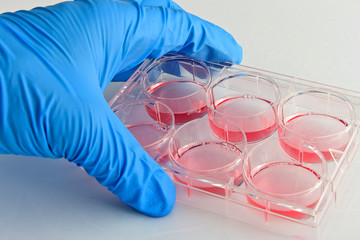 Scientist handling 6-well plate in cell culture experiment
