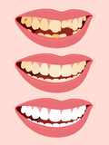 Progressive Stages Of Tooth Decay caries poster