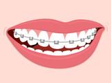 Fototapety Braces Corrective Orthodontics