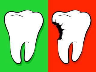 Healthy And Unhealthy Tooth Cartoon caries
