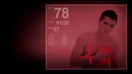 Heart attack of a young man with EKG signs