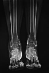 radiografia gambe e piedi