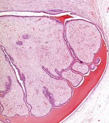 Fibroadenoma of breast