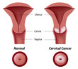 Cervical cancer, eps8