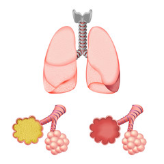 Alveoli In And Lungs