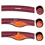 atherosclerosis plaque front and side view illustration