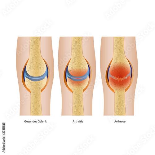 Artrose und Artritis im Gelenk Illustration eps10