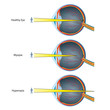myopia and hyperopia vektor illustration