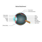 Retinal Detachment eps10 illustration poster