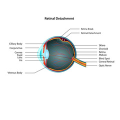 Retinal Detachment eps10 illustration