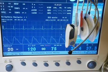 Patient monitor with ECG electrodes, thermal and oximeter sensor