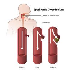 Diverticulum epiphrenic eps vector illustration