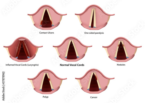 vocal cords findings vector illustration
