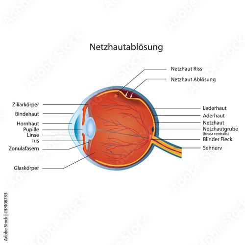 netzhaut ablösung deutsch vektor illustration