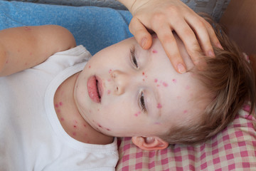 Close up boy with chickenpox