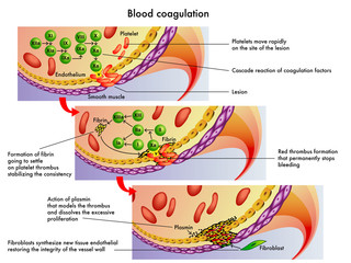 coagulazione sanguigna