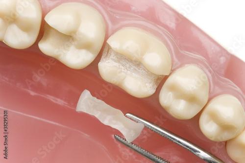Leinwanddruck Bild Mundhygiene