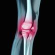 Bein mit Blick auf das rot eingefärbte Knie mit Gelenk
