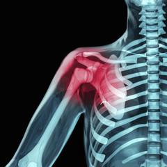 Schulter mit Blick auf das rot eingefärbte Schultergelenk