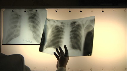 doctors regard chest x-ray