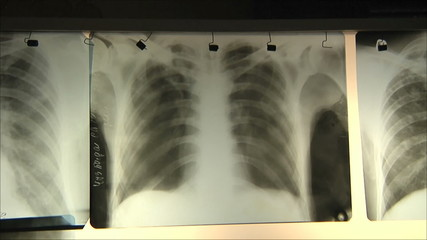 doctors regard chest x-ray 2