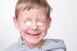 Junge mit eingeklemmten Euromünzen