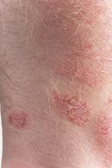 Psoriasis close-up
