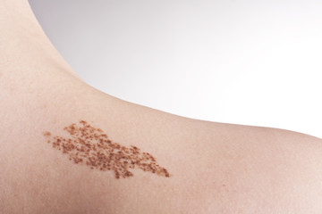 Birth mark and mole on the body