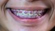 Lady with dental braces