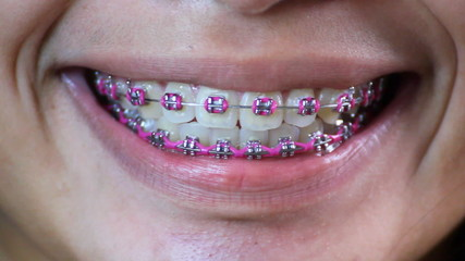 Lady with dental braces
