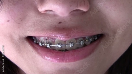 Smiline With Braces