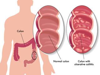 colite ulcerosa