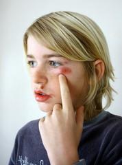 visage blessé d'enfant battu