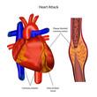 coronary artery heart attack illustration