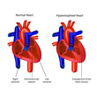 heart ventricular hypertrophy vector illustration