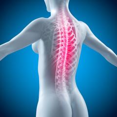 Weiblicher Rücken mit Wirbelsäule - Rückenschmerzen