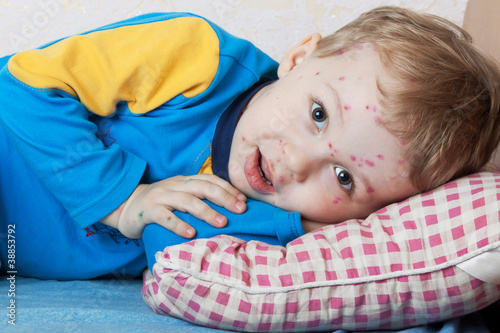 Boy suffers chickenpox