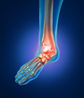 Постер, плакат: Human Foot Pain
