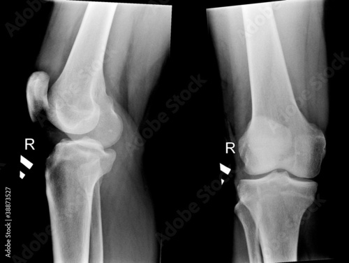 x-ray pictures of human knee joints