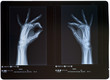 X-ray of hands. Female.