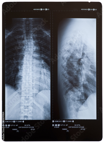 Back X-ray showing scoliosis (curvature). 2 views. Female.