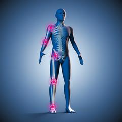 Silhouette des Mannes mit Gelenkschmerzen und Skelett