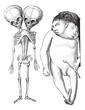 Fig. 174. Skeleton of two-headed monster derodyme. (Musee Dupuyt