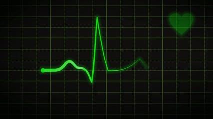 Heartbeat - Loop (II)