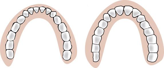 apparato dentale