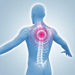 Mann mit Rückenschmerzen und dem Röntgenbild der Wirbelsäule