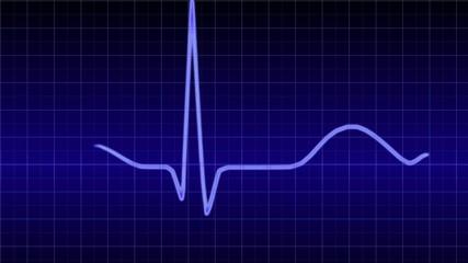 Heartbeat - healthy