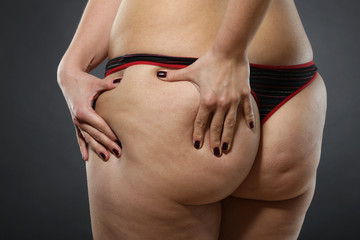 Cellulite - bad skin condition