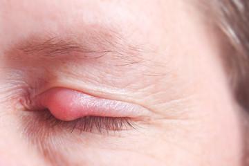 Geschlossenes Auge mit Gerstenkorn